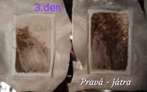 detoxikační náplasti pomáhají ulevit tělu od škodlivých látek